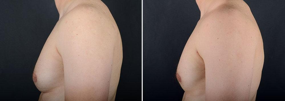 gynecomastia-16704c-sobel