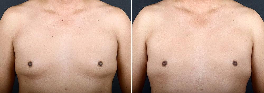 gynecomastia-16715a-sobel