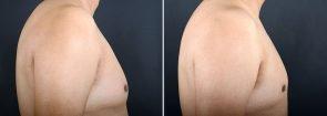 gynecomastia-16715c-sobel